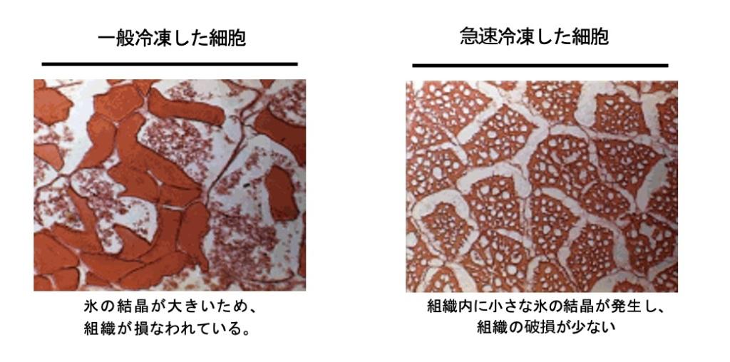 急速冷凍庫の細胞図